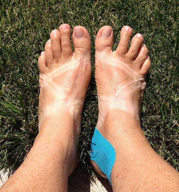 Bare feet, injured ankle