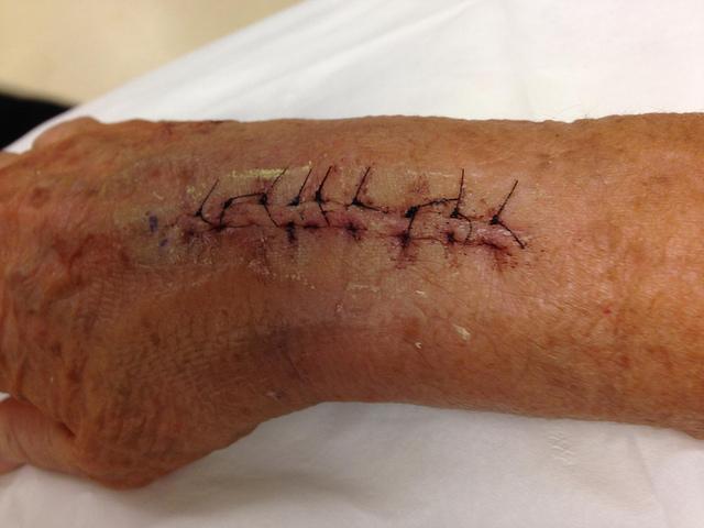 surgery 5
