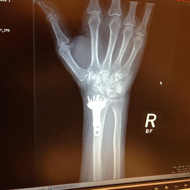 surgery 9
